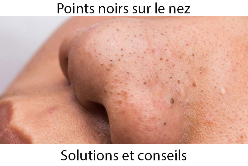 nettoyer points noirs nez